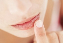 Treating the common cold sore