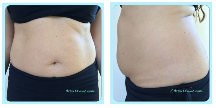 swollen-belly